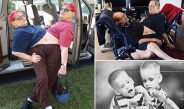 FOTO/ Lindën të ngjitur, ndahen nga jeta binjakët më të vjetër në botë