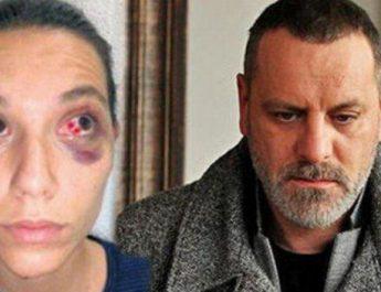 """Skandal në Turqi: Aktori i serialit """"Sulejmani i madhërishëm"""" rreh të dashurën"""